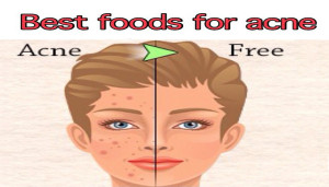 Best Foods For Acne