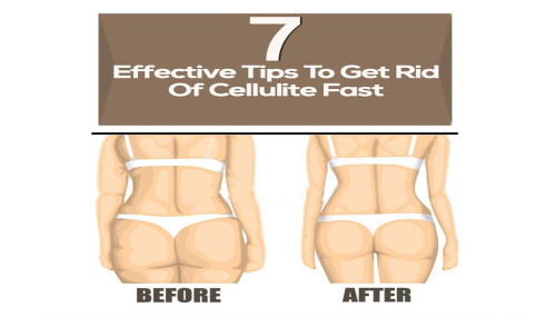 7 Effective Tips To Get Rid Of Cellulite Fast7 Effective Tips To Get Rid Of Cellulite Fast