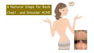 6 Natural Steps For Back, Chest and Shoulder ACNE